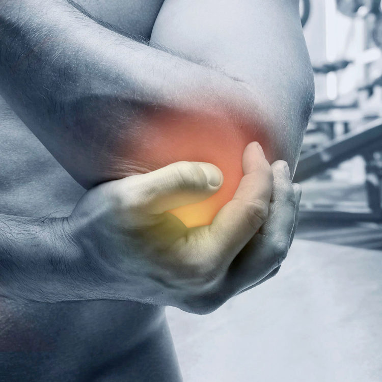 A patient suffering with tennis elbow. Treatments are available from Tom Claykens at Biddenden Chiropractic.
