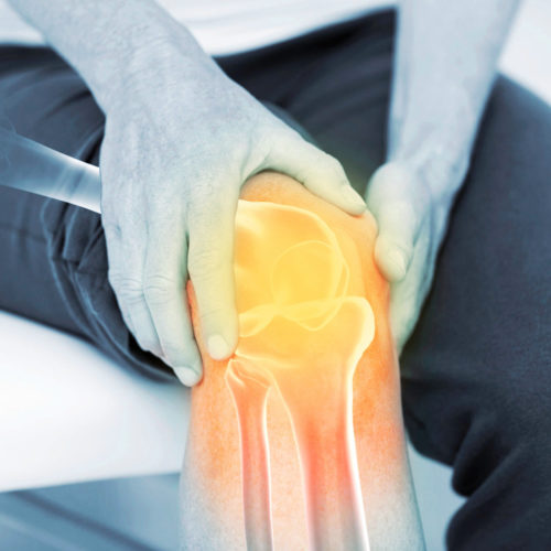 A patient suffering with knee pain. Treatments are available from Tom Claykens at Biddenden Chiropractic.
