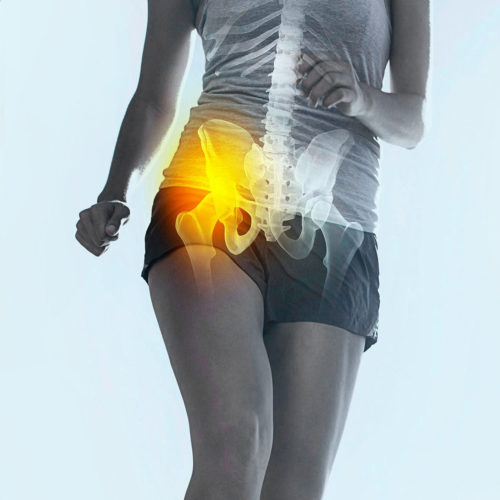 A patient suffering with hip pain. Treatments are available from Tom Claykens at Biddenden Chiropractic.